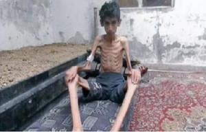 الجوع يلتهم السوريين11