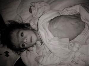 الجوع يلتهم السوريين12