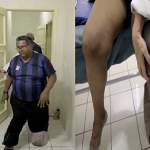 """بالفيديو والصور: برازيلي مصاب بمرض نادر يحوله إلى """"فيل"""""""