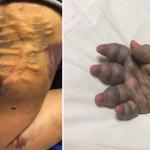 بالصور: مواطن يناشد خادم الحرمين الشريفين بتمديد فترة علاج ابنه في أمريكا من مرض نادر وخطير