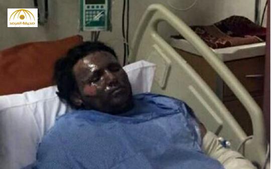 مواطن يغامر بحياته لإنقاذ شخصين من حادث مروري فتنفجر السيارة بوجهه-صورة