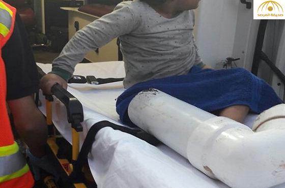 """الدفاع المدني ينجح في فك احتجاز قدم طفل علقت في """"مرحاض"""" بالخُبر-صور"""