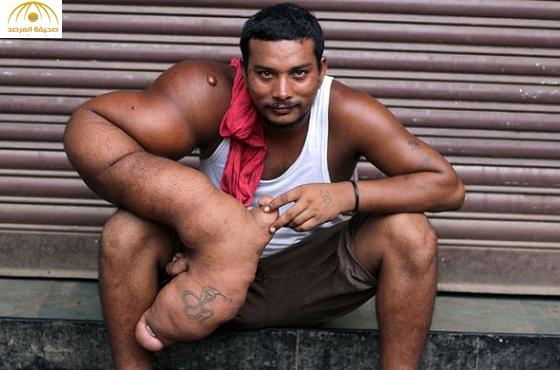 بالصور: هندي يعاني  من مرض «العملقة» وزن ذراعه 20 كيلو وتنمو باستمرار