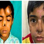 بالصور: طفل هندي يفقد أنفه وطبيب يزرع له أنف جديد في جبهته