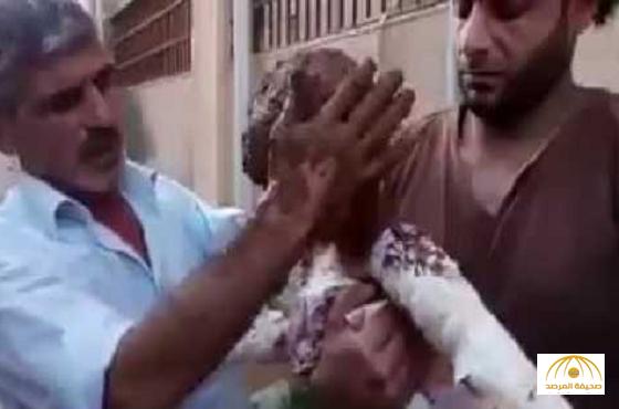 """بالفيديو.. قنابل """"النابالم"""" تشوه جسد طفل بحي الوعر بحمص.. والأهالي يبردونه بالطين بسبب غياب الدواء"""