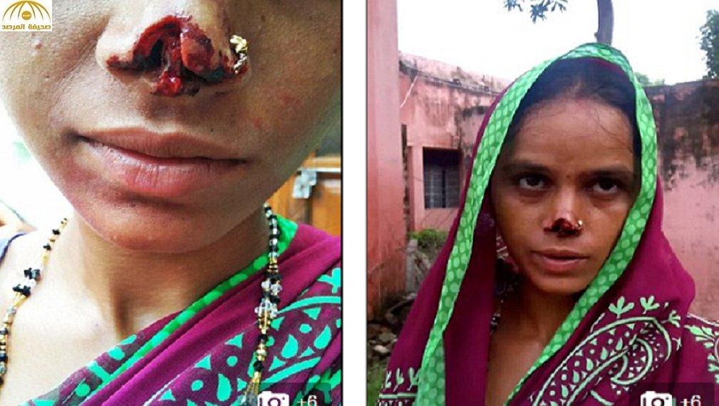 هندي يقطع أنف زوجته ويلوذ بالفرار بعد أن رفض أهلها تلبية طلبه! – صورة