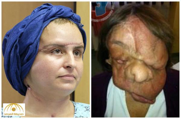 بالصور: شاهد .. عملية زرع وجه لسيدة بولندية تعيد الأمل لها في حياة طبيعية