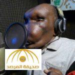 بالفيديو : شاهد صاحب أغرب رأس في أوغندا يتحول لمغني شهير