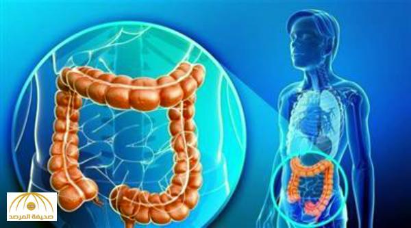 تعرف على طريقة الكشف المبكر عن سرطان القولون