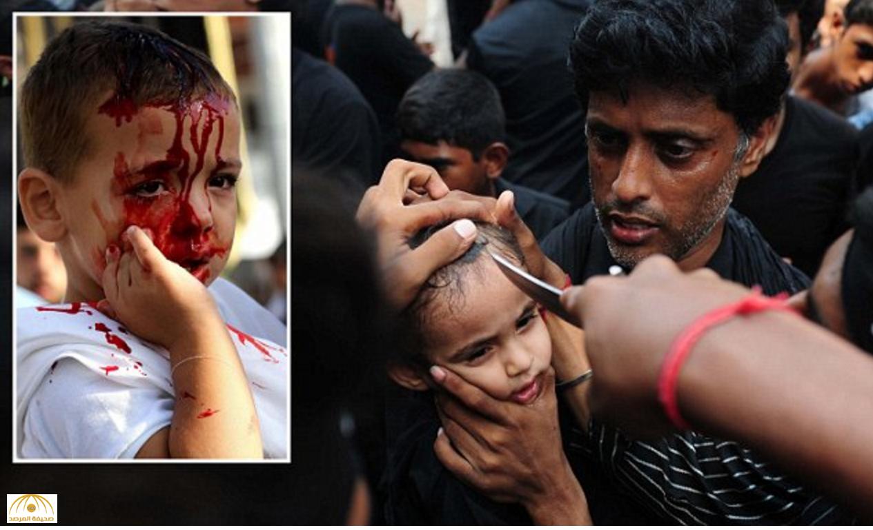 """صور جديدة: طفلة تستعد لفتح فروة رأسها بـ""""سكين"""".. ولعنة الحسين تطارد الشيعة في عاشوراء!"""