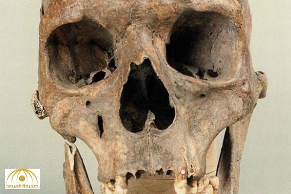 بالصور : اكتشاف أكبر جمجمة بشرية في العالم