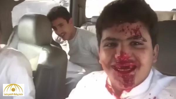 بالفيديو .. شاب يوثق إصابته إثر حادث .. هل هذه الدماء حقيقية ؟!
