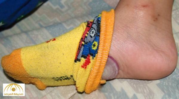 ماذا يحدث لو وضعت شرائح البصل على قدمك لفترة: 3 فوائد مذهلة!
