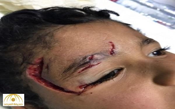 بالصورة: إصابة مروعة .. «كلب» ينهش رأس طفل بالقريات