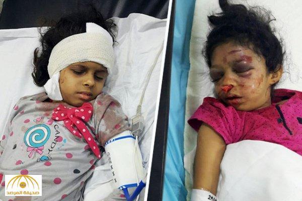 الجيران سمعوا الصراخ .. عاملة إثيوبية تعتدي بالضرب على طفلتين وأمهما بطريقة وحشية في جازان