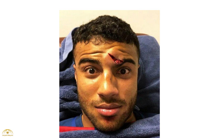 بالصور : لاعب وسط برشلونة يتعرض لإصابة مروعة في الأنف
