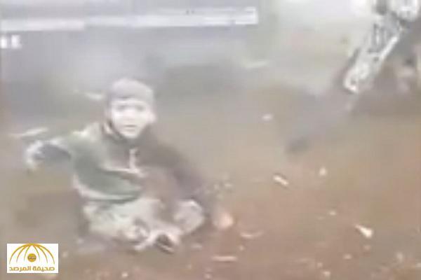 بقصف طيران الأسد .. شاهد : بابا شيلني لطفل سوري فقد ساقيه يبكي العالم