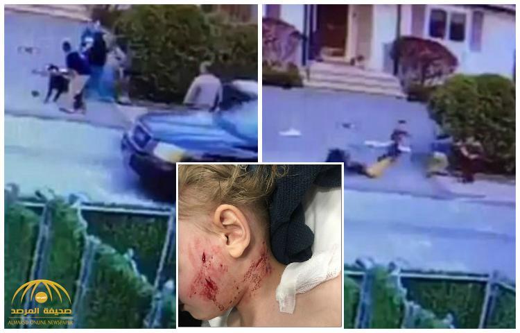 بالفيديو: كلب يهجم على طفل في نيويورك و يتسبب له في جراح بليغة