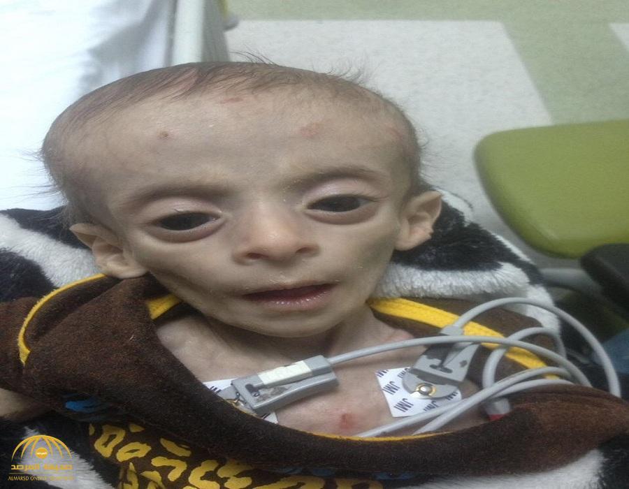 """صور: مرض نادر يحول طفل بعسير إلى """"هيكل عظمي"""".. وأسرته تروي القصة !"""