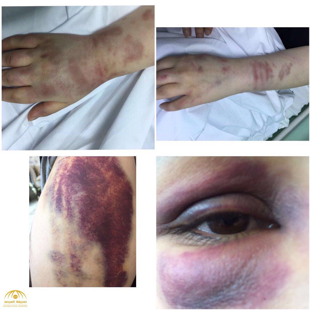 """""""سعودية"""" تتعرض للضرب المبرح من زوجها.. وهكذا تفاعلت """"العمل"""" ! -صور"""