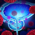 وأخيرًا..علاج يقضي على سرطان البروستات