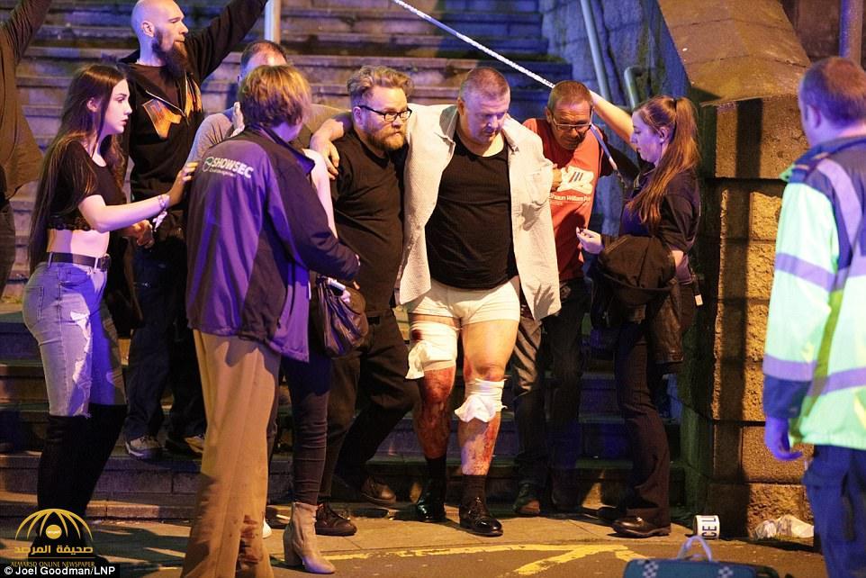 """""""الأشلاء تطايرت في كل مكان"""".. شهود عيان يروون لحظات الرعب التي عاشوها في انفجار """"مانشستر"""""""