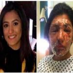 تطورات بقضية حرق وجه مسلمة وقريبها بالأسيد في لندن