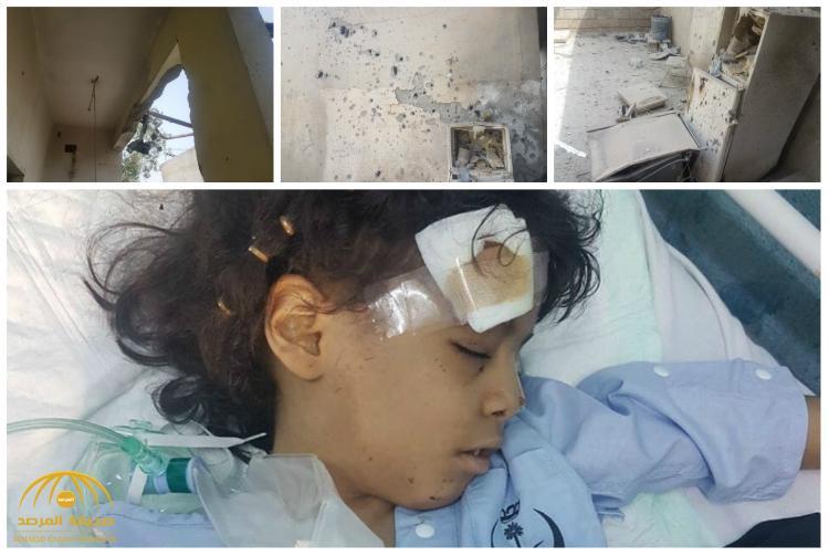 بالصور : إصابة إمرأة وطفلتين إثر سقوط شظايا مقذوف حوثي على محافظة العارضة