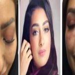 """خبيرة تجميل سعودية تروي معاناتها مع حقن """"الفيلر"""".. وتكشف عن المضاعفات التي حدثت لها- فيديو"""