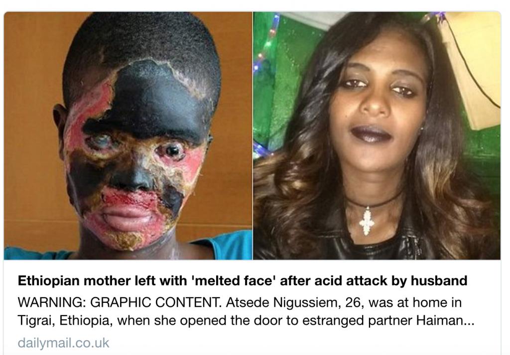 """في أول لقاء جمع بينهما فور عودته من السفر.. زوج يغسل وجه زوجته بـ """"الأسيد"""" الحارق!-صور"""
