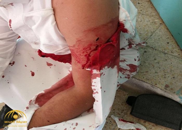 3 أشخاص يعتدون بالضرب على معلم بأسلحة بيضاء وعصا غليظة في حي النهضة بالرياض.. وهذا ما كشفه عن أحدهم