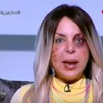 شاهد:مذيعة مصرية تظهر وعلى وجهها آثار اعتداء وحشي..وهذا ما كشفته!