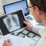 """علاج """"مرضى سرطان الرئة"""" في 4 أيام !"""