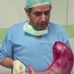 بالفيديو : طبيب يحمل معدة بشرية ضخمة ويكشف سر نمو حجمها  بهذا الشكل!