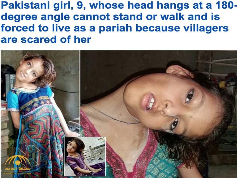 حالة نادرة حيرت الأطباء..شاهد.. فتاة باكستانية تثير الرعب بين الأطفال بسبب رقبتها المعوجة!