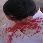 9 أشخاص ملثمين  يعتدون على مدير مدرسة بالرياض ويشجون رأسه بقطع حديدية