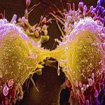 الموافقة على علاج جديد لسرطان المعدة .. وهذه آثاره الجانبية!