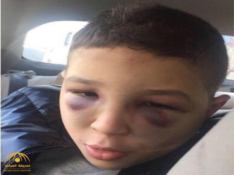 """تفاصيل جديدة في قضية طفل السعودية المعنف """"عمر"""".. وأول تعليق من سفارة المملكة بالأردن"""