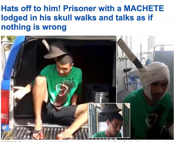 شاهد .. حالة غريبة.. رجل يتحدث وحديدة ضخمة مغروسة داخل جمجمته في سجن بالبرازيل!