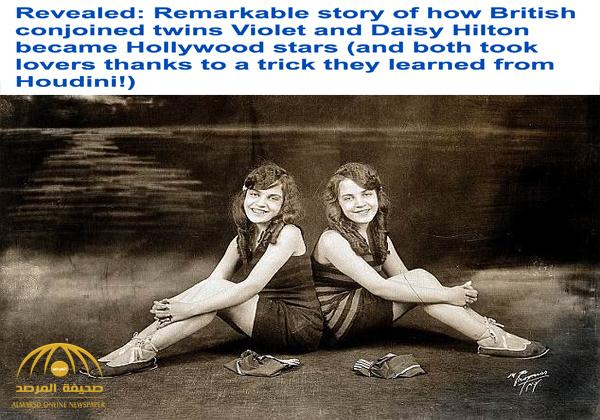 ماتت إحداهما وسحبتها الأخرى لمدة يومين .. قصة مأساوية لفتاتين ملتصقتين من الخلف قبل 100عام -صور