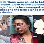 اتهامات للاعب أمريكي شهير بالاعتداء على صديقته السابقة وتحطيم وجهها – صور