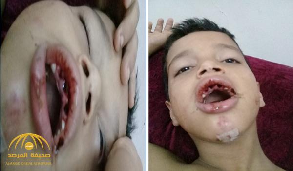 بالدمام: عشريني يعتدي على  طفل بطريقة بشعة ويفقده أسنانه