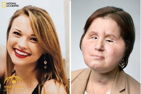 في عملية نادرة استغرقت 31 ساعة.. زرع وجه جديد لفتاة أمريكية بعدما شوهت وجهها أثناء محاولتها الانتحار – صور