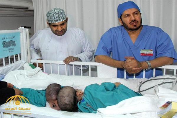 بعد فصلهما في المملكة منذ 11 عاماً .. شاهد أحدث صور للتوأم السيامي العماني