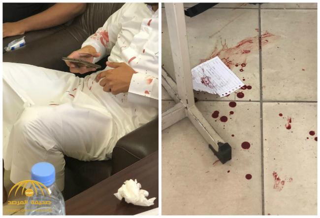 تناثر الدم أمام طلابه .. بالصور: طالب ثانوي يعتدي على معلمه بلكمة قوية على أنفه داخل الفصل بالطائف