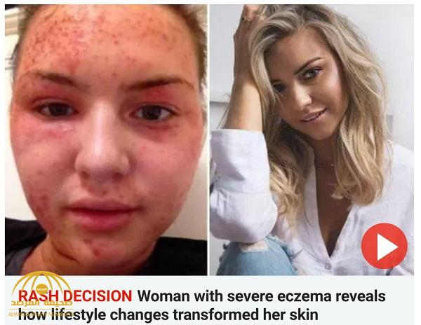 """ترجمة حصرية .. شاهد: فتاة بريطانية تتغلب على """"الإكزيما"""" وتنشر وصفة جديدة وفعالة للتخلص منها"""