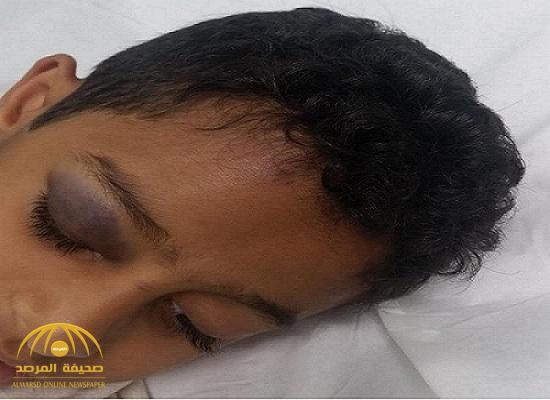 إصابة طالب بكسر في الجمجمة داخل مدرسة في الطائف!.. ووالده يرفع شكوى رسمية!