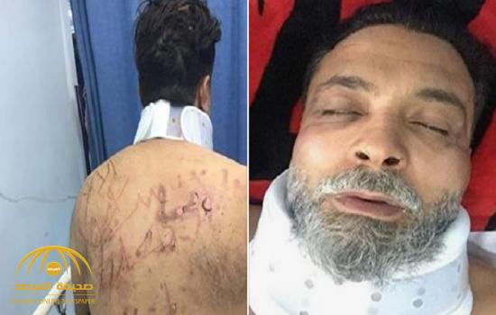 """اختطاف أمين منظمة """"مؤمنون بلا حدود"""" في الأردن وحرق لسانه والكتابة على ظهره بـ""""سكين"""" -صور"""