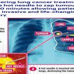 دراسة تكشف عن علاج ثوري للقضاء على سرطان الرئة في 30 دقيقة – صور