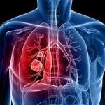 3 أسئلة.. الإجابة عليها بنعم تحتم عليك إجراء فحص سرطان الرئة